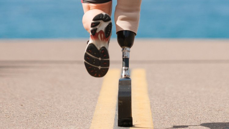 FTC tribunal orders unwinding of prosthetics merger