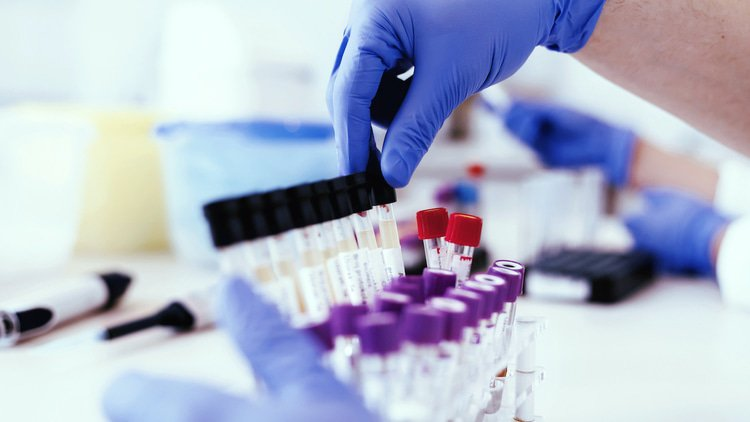 Singapore conditionally clears laboratory deal